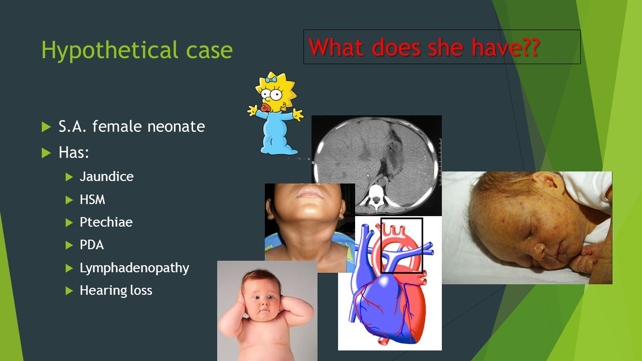 What does she have Hypothetical case S.A. female neonate Has: