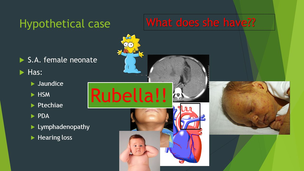 Rubella!! What does she have Hypothetical case S.A. female neonate