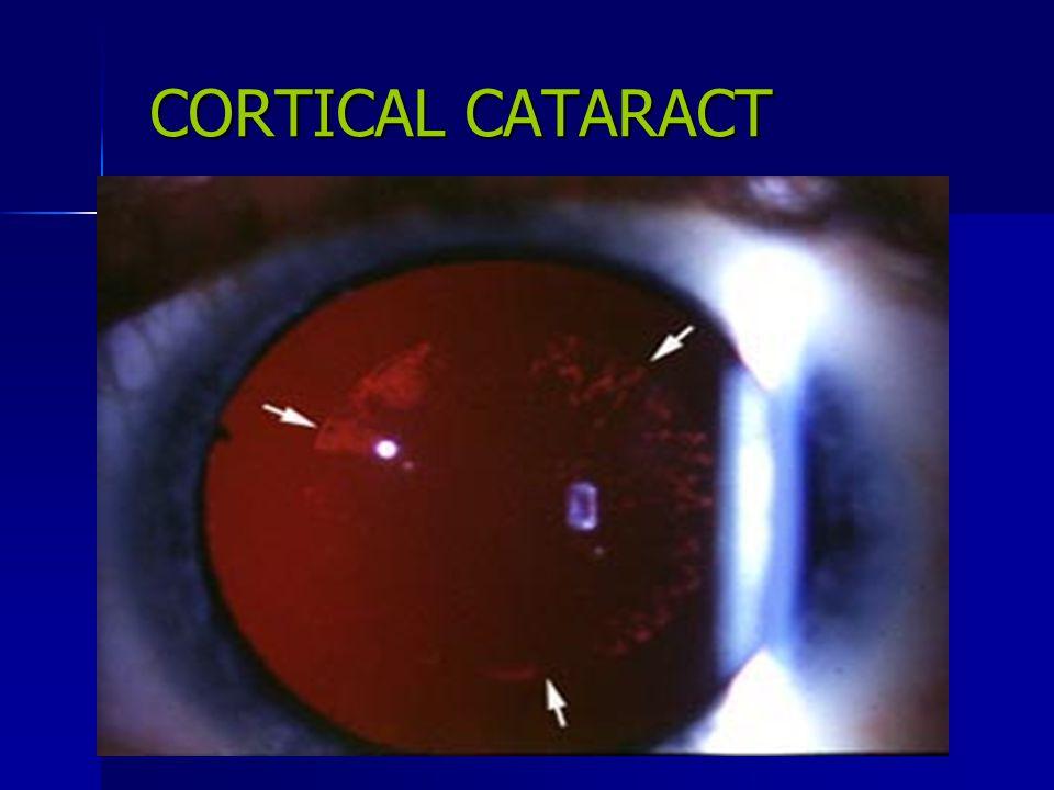 CORTICAL CATARACT
