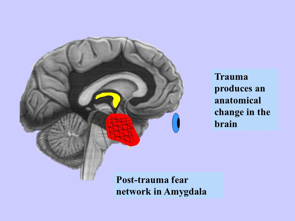 Trauma produces an anatomical change in the brain
