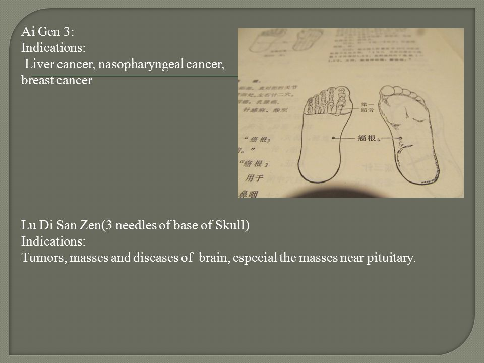 Ai Gen 3: Indications: Liver cancer, nasopharyngeal cancer, breast cancer Lu Di San Zen(3 needles of base of Skull) Tumors, masses and diseases of brain, especial the masses near pituitary.