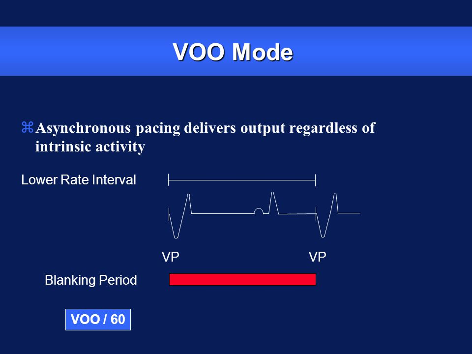 VOO Mode Asynchronous pacing delivers output regardless of intrinsic activity. Lower Rate Interval.