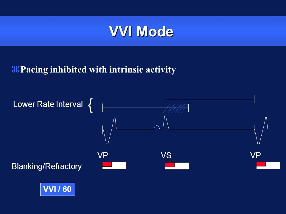 { VVI Mode Pacing inhibited with intrinsic activity