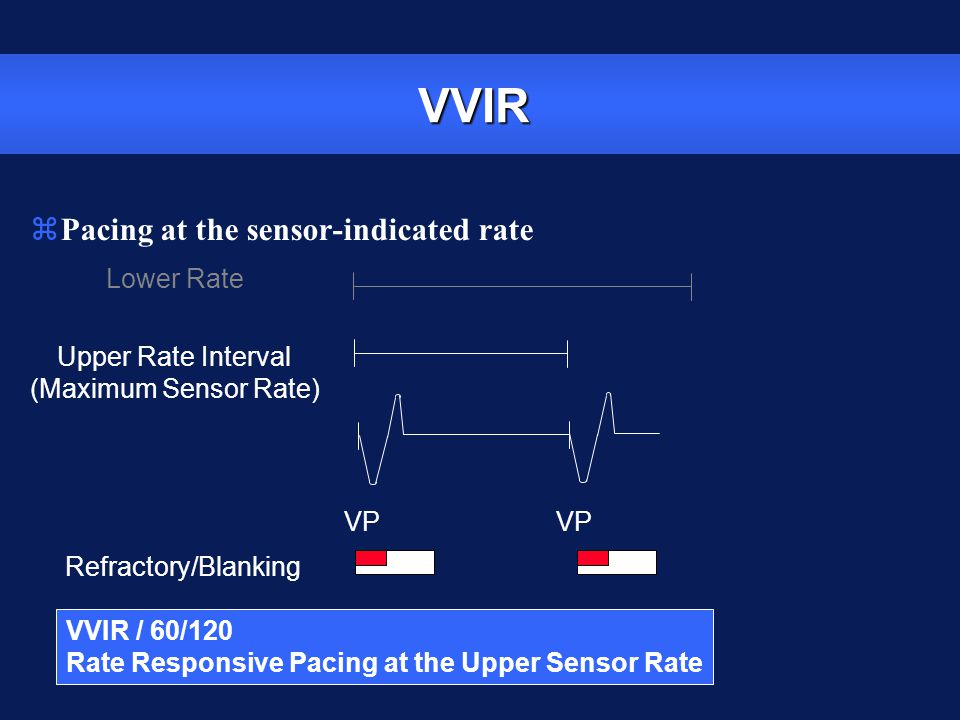VVIR Pacing at the sensor-indicated rate Lower Rate