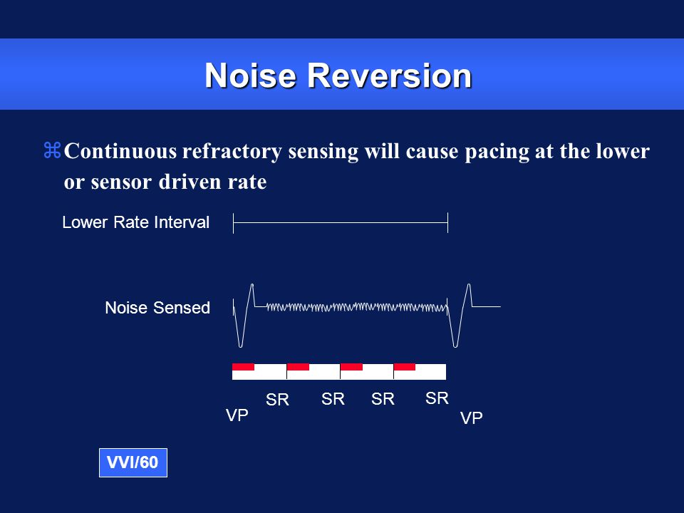Noise Reversion Continuous refractory sensing will cause pacing at the lower or sensor driven rate.