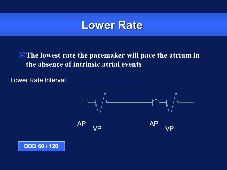 Lower Rate The lowest rate the pacemaker will pace the atrium in the absence of intrinsic atrial events.