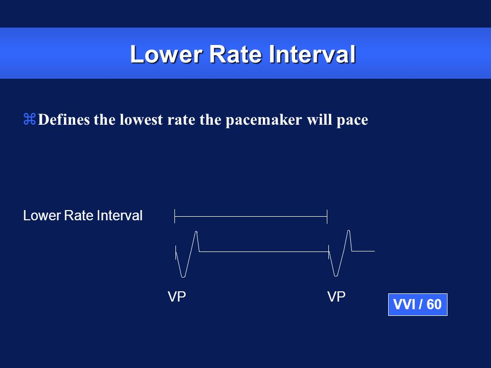 Lower Rate Interval Defines the lowest rate the pacemaker will pace