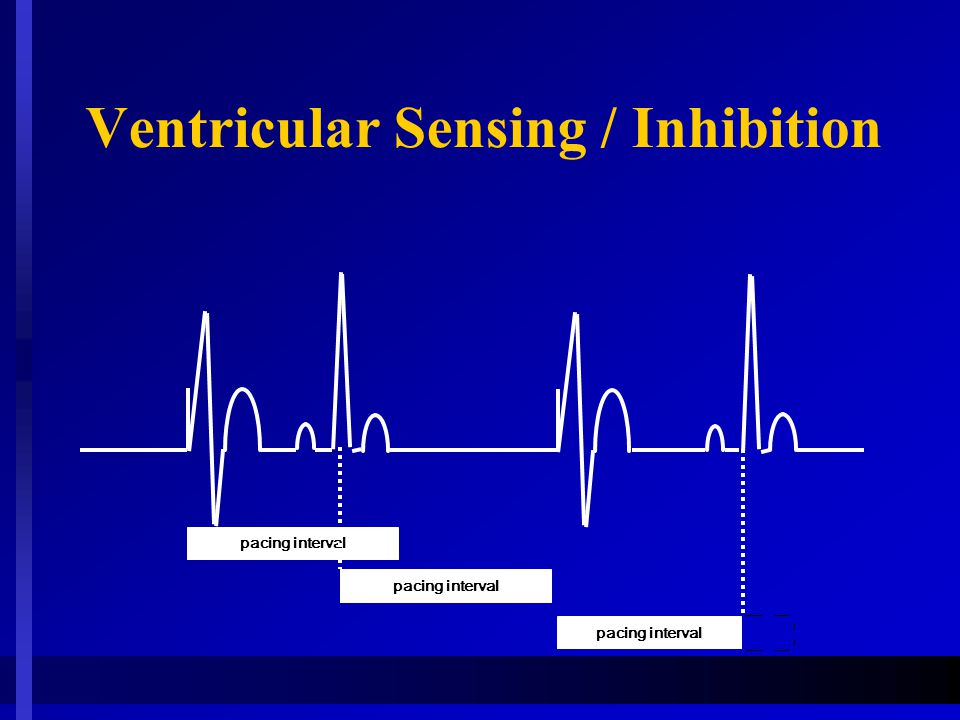 Ventricular Sensing / Inhibition