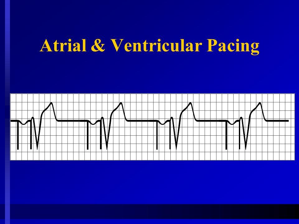 Atrial & Ventricular Pacing