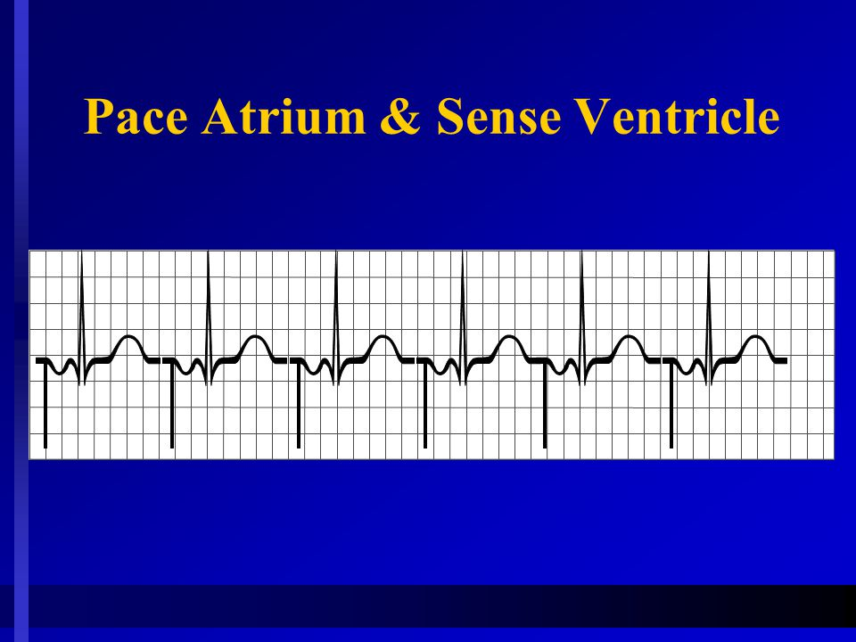 Pace Atrium & Sense Ventricle