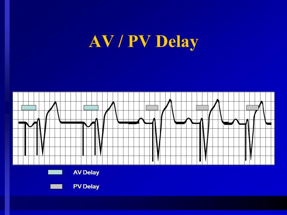 AV / PV Delay AV Delay PV Delay