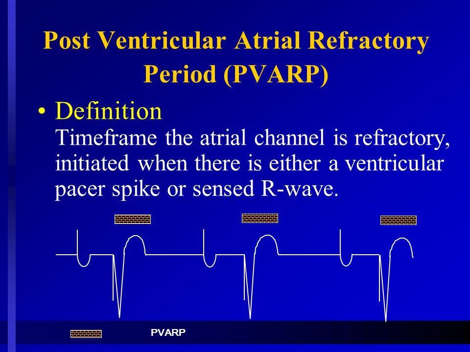 Post Ventricular Atrial Refractory Period (PVARP)