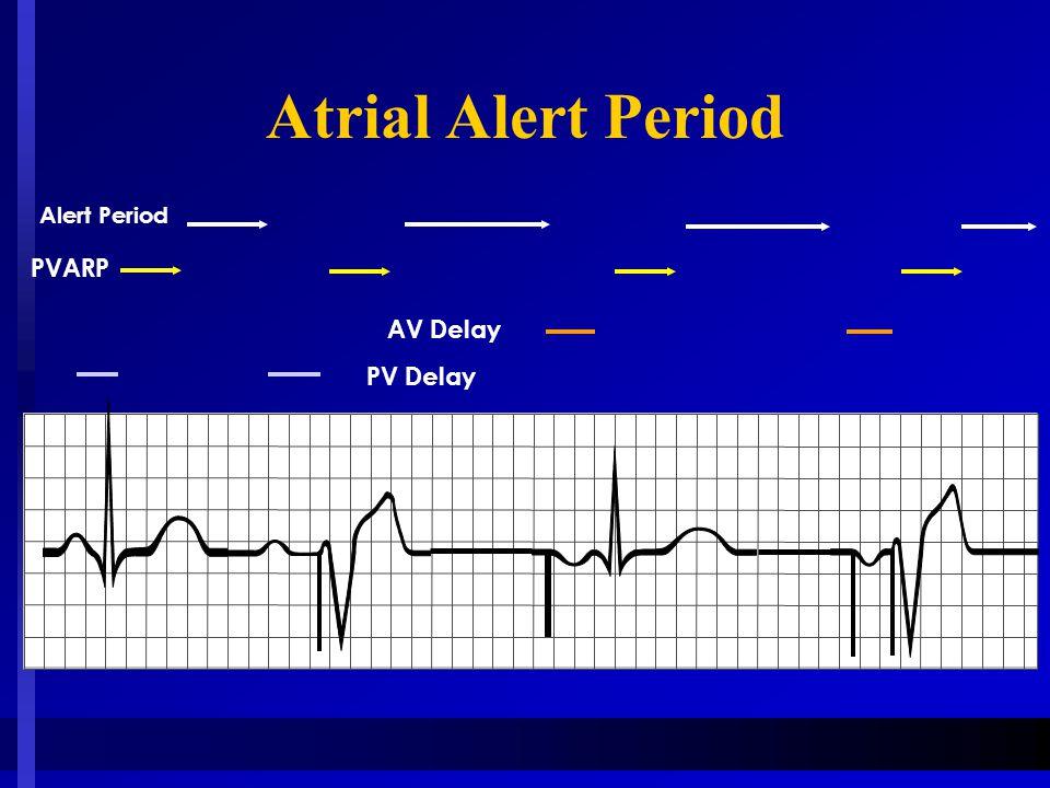Atrial Alert Period Alert Period PVARP AV Delay PV Delay