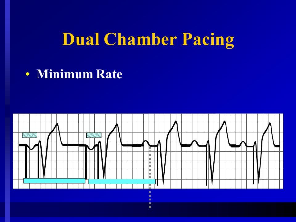 Dual Chamber Pacing Minimum Rate