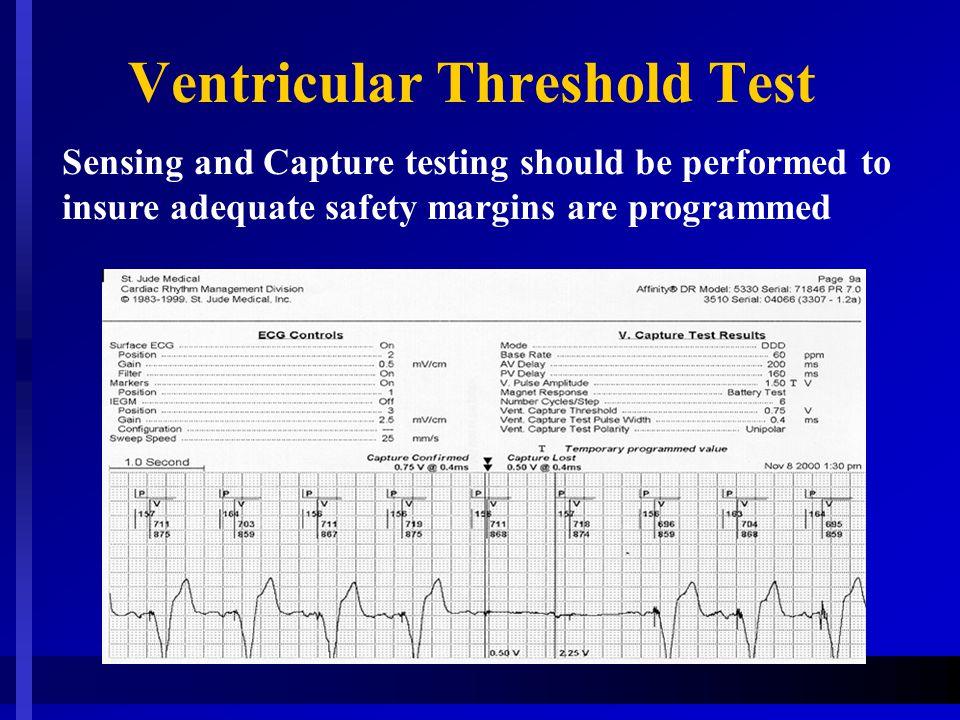 Ventricular Threshold Test