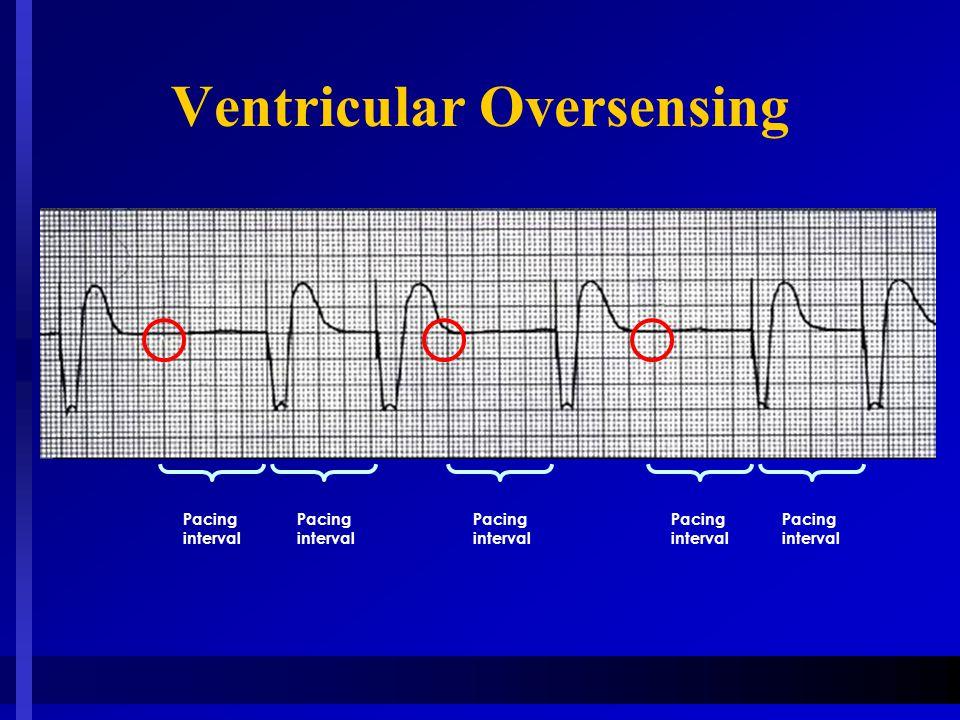 Ventricular Oversensing