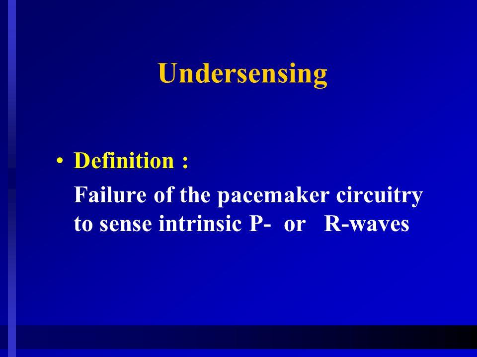 Undersensing Definition :