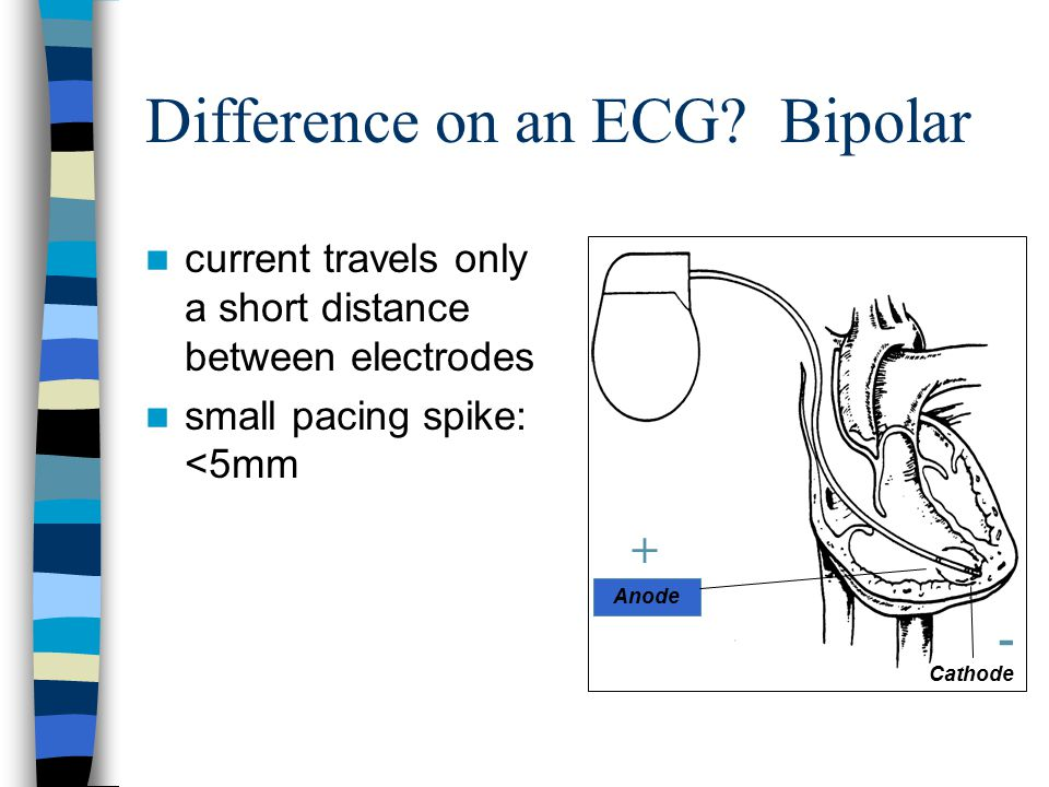 Difference on an ECG Bipolar