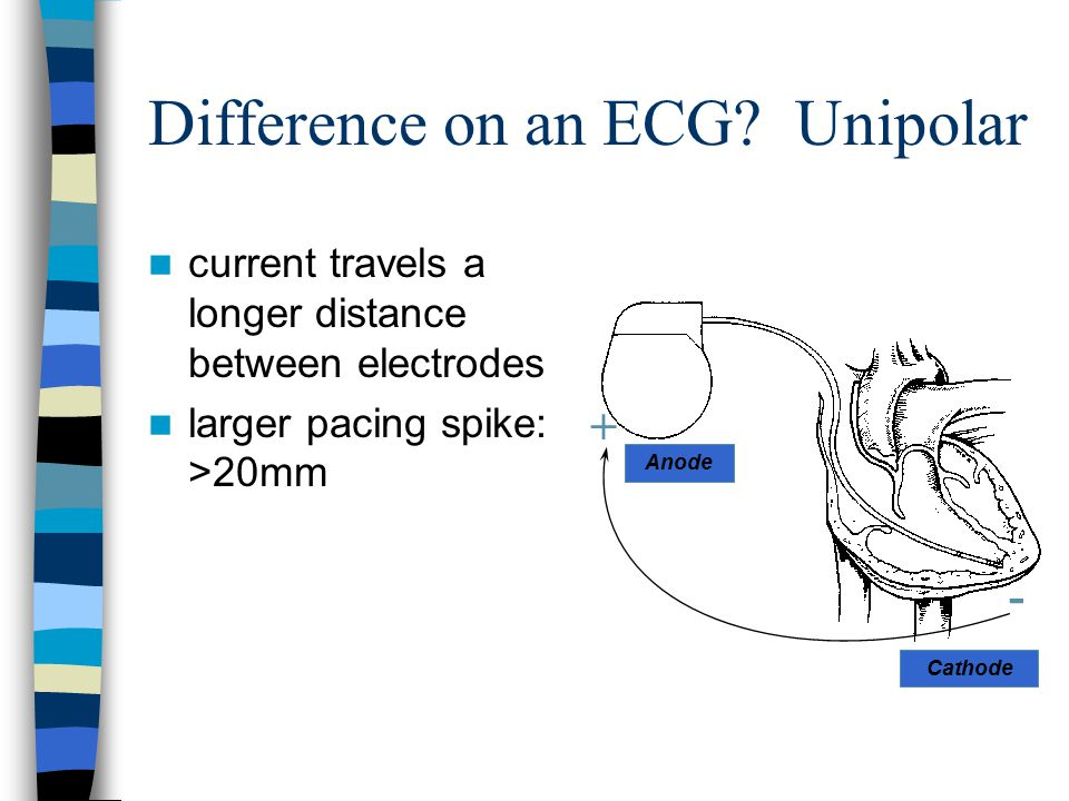 Difference on an ECG Unipolar