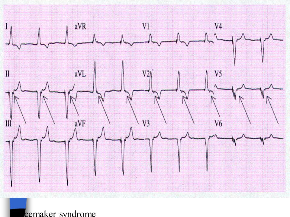 Figure 21-15 A 12-lead ECG from a 63-year-old woman with recurrent syncope several months after implantation of a VVI pacemaker. The arrows show the retrograde P waves of 1:1 ventricular-to-atrial conduction that may be associated with a pacemaker syndrome.