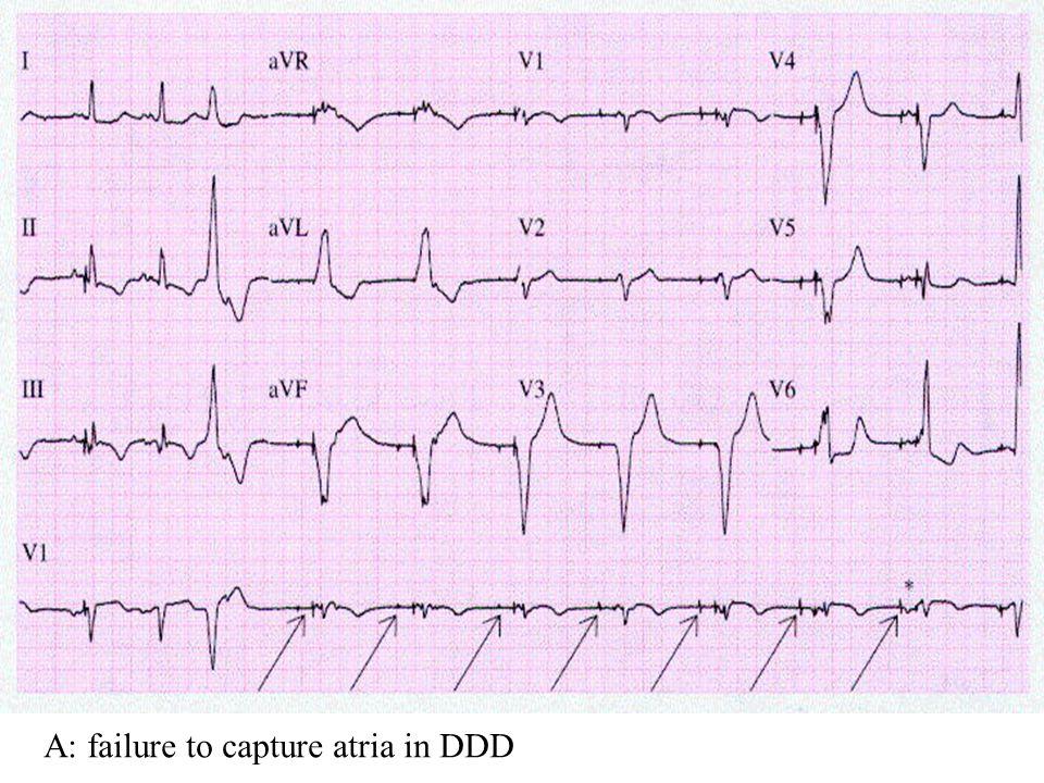 A: failure to capture atria in DDD