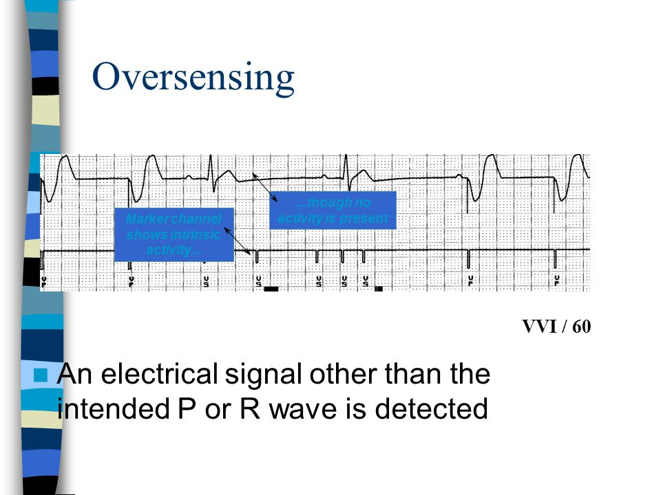 Oversensing VVI / 60. ...though no activity is present. Marker channel shows intrinsic activity...