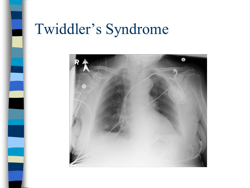 Twiddler's Syndrome