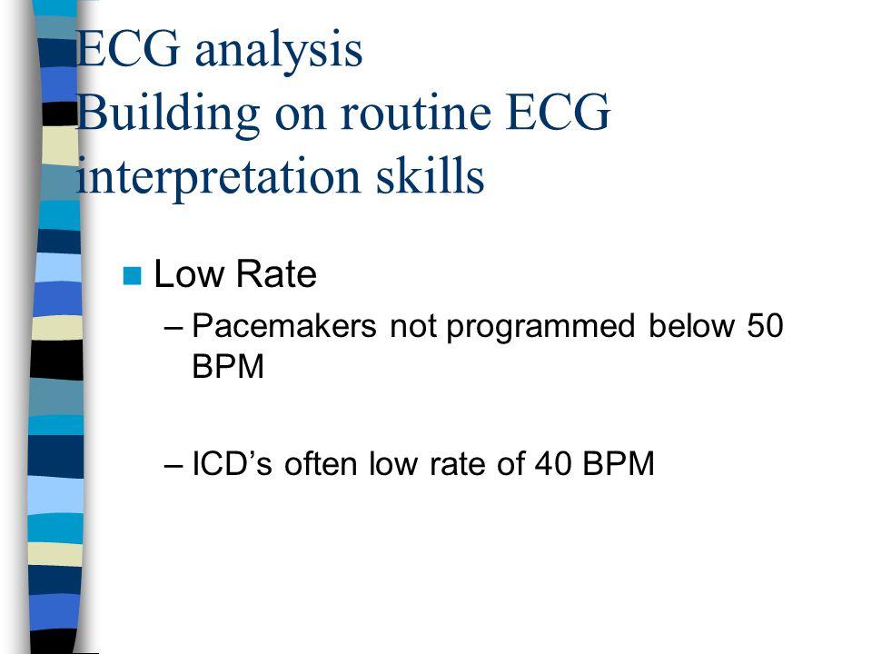 ECG analysis Building on routine ECG interpretation skills