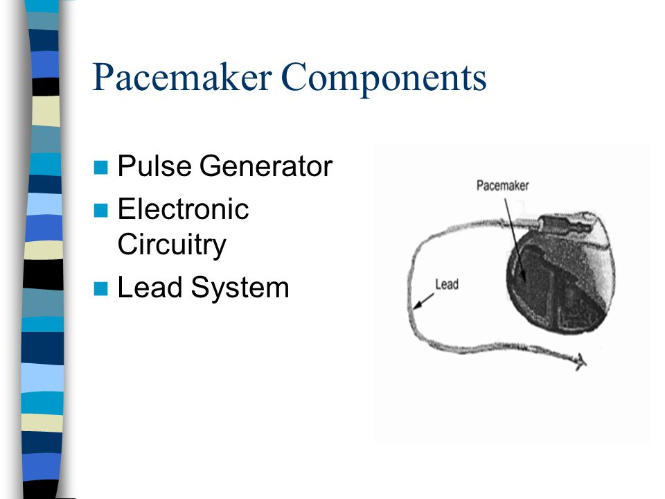 Pacemaker Components Pulse Generator Electronic Circuitry Lead System