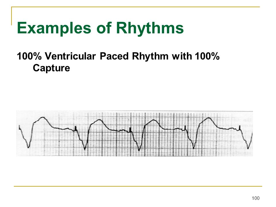 Examples of Rhythms 100% Ventricular Paced Rhythm with 100% Capture