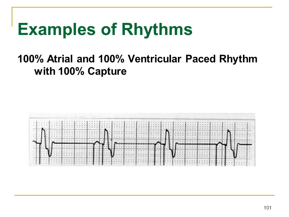 Examples of Rhythms 100% Atrial and 100% Ventricular Paced Rhythm with 100% Capture