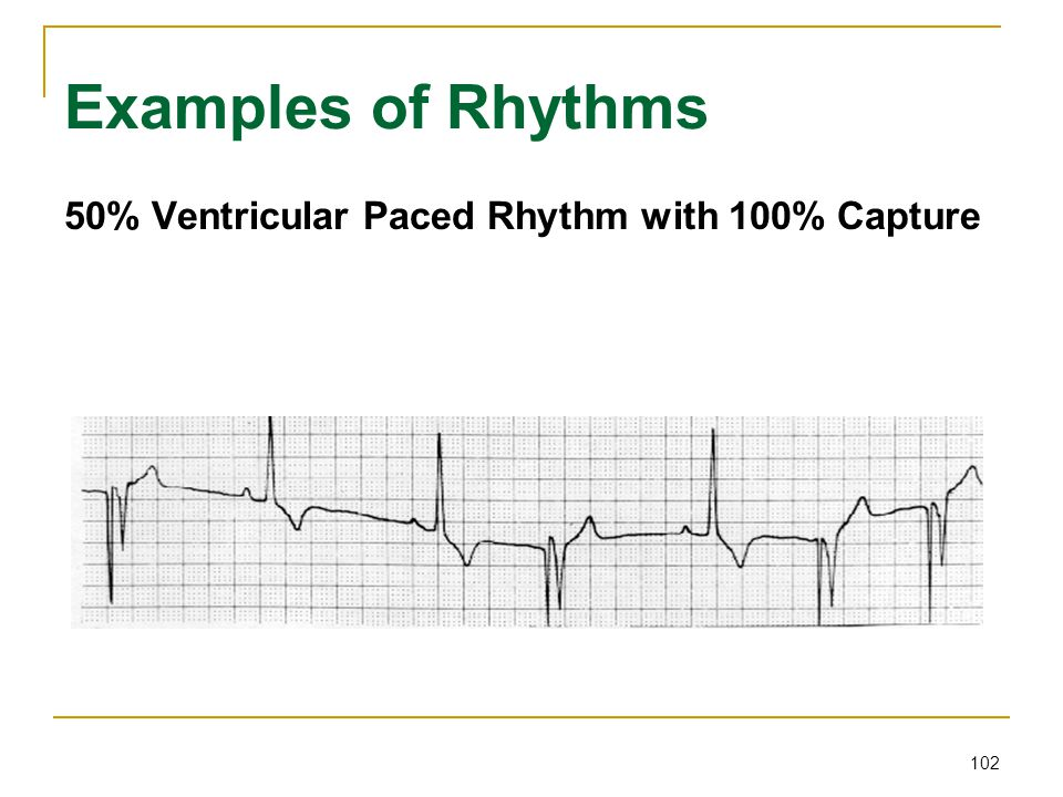 Examples of Rhythms 50% Ventricular Paced Rhythm with 100% Capture