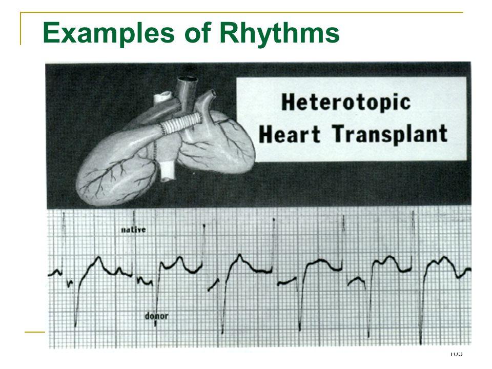 Examples of Rhythms