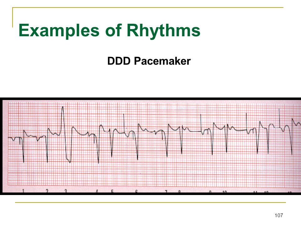 Examples of Rhythms DDD Pacemaker