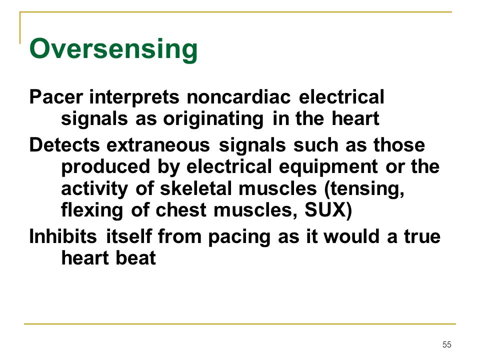 Oversensing Pacer interprets noncardiac electrical signals as originating in the heart.