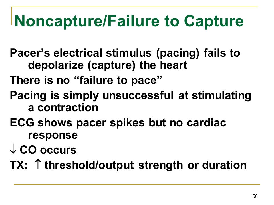 Noncapture/Failure to Capture
