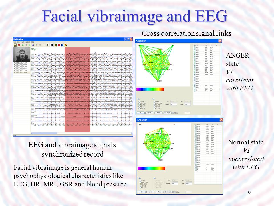 Facial vibraimage and EEG