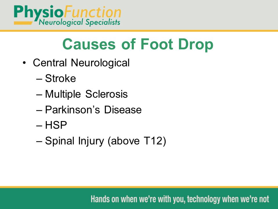Causes of Foot Drop Central Neurological Stroke Multiple Sclerosis