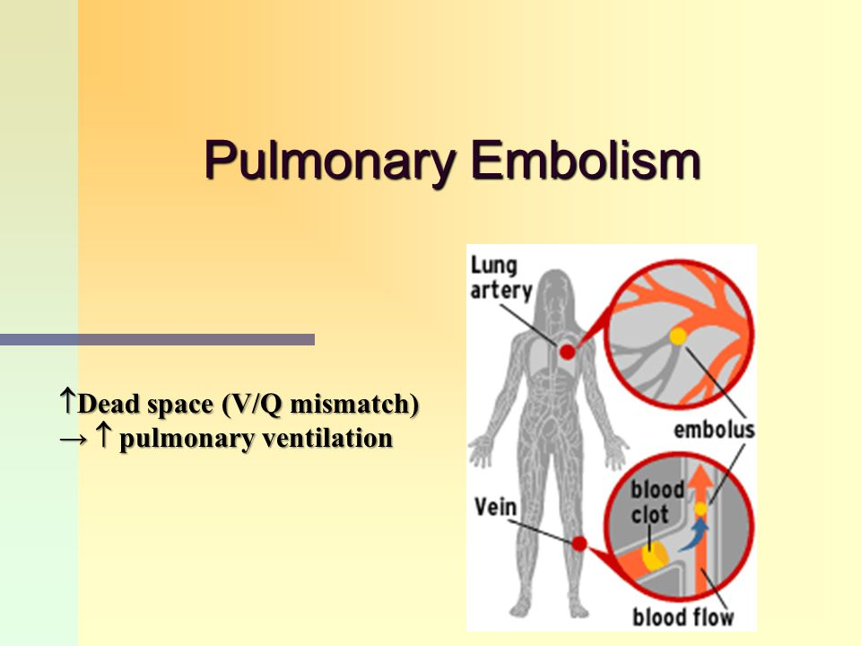Pulmonary Embolism Dead space (V/Q mismatch)