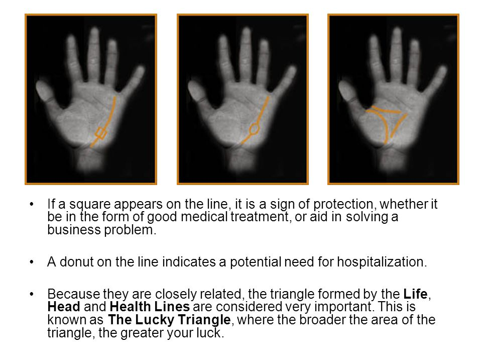 If a square appears on the line, it is a sign of protection, whether it be in the form of good medical treatment, or aid in solving a business problem.