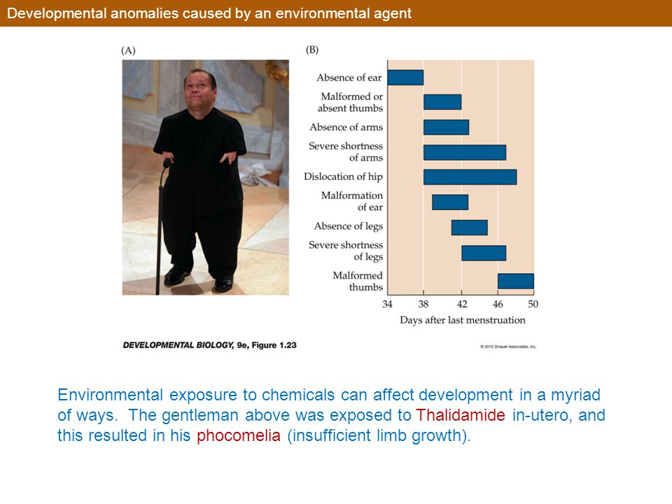 Developmental anomalies caused by an environmental agent