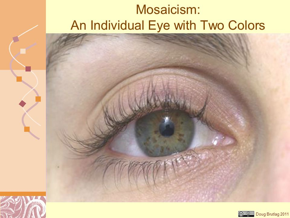 Mosaicism: An Individual Eye with Two Colors