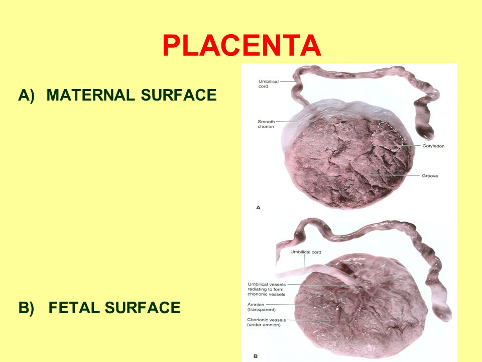 PLACENTA MATERNAL SURFACE B) FETAL SURFACE