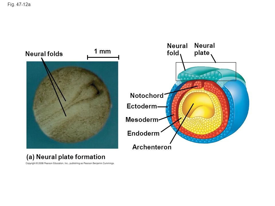 (a) Neural plate formation