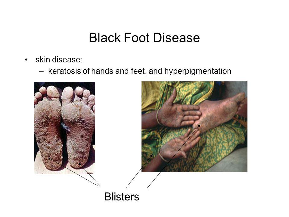 Black Foot Disease Blisters skin disease: