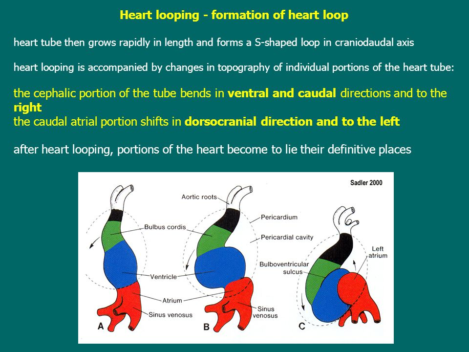 Heart looping - formation of heart loop