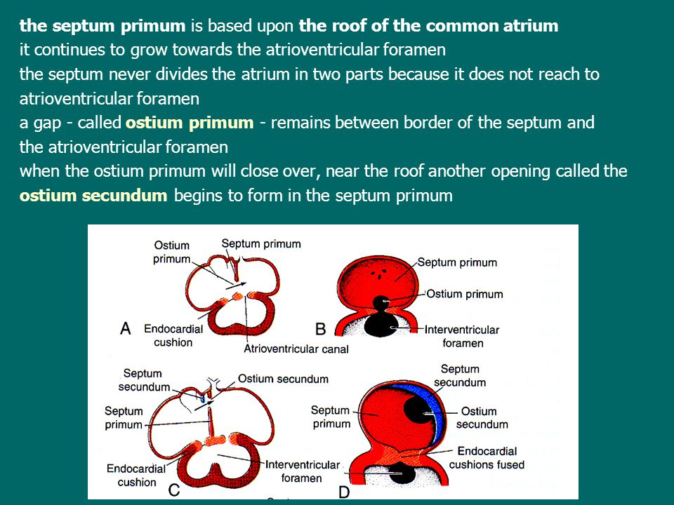 the septum primum is based upon the roof of the common atrium