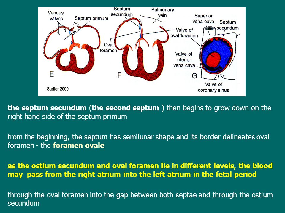 the septum secundum (the second septum ) then begins to grow down on the right hand side of the septum primum