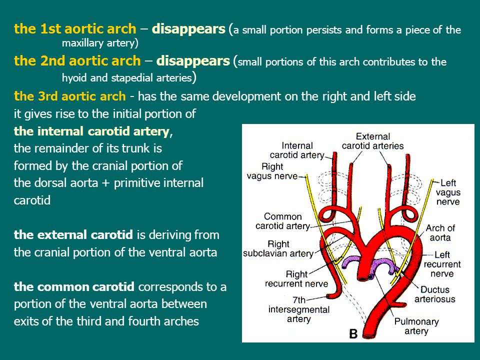 the 1st aortic arch – disappears (a small portion persists and forms a piece of the maxillary artery)