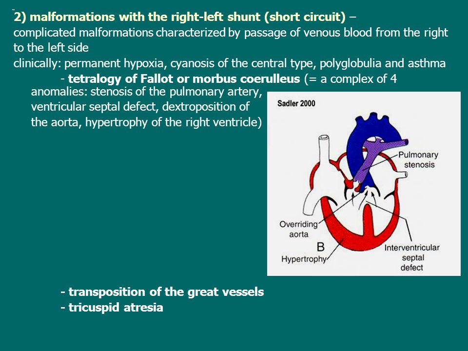 2) malformations with the right-left shunt (short circuit) –